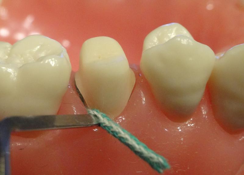 圧排 歯肉 【4】印象採得で重要となる歯肉圧排のコツ